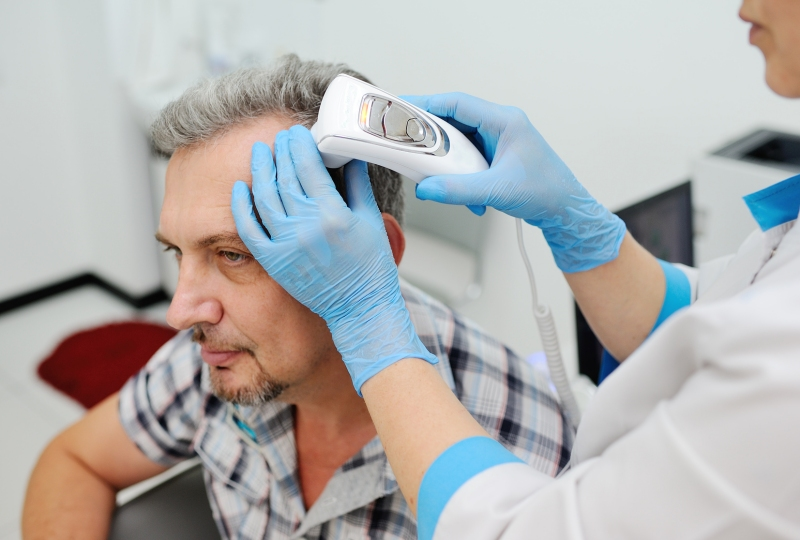 Trichogram – badanie włosów, które stwierdzi przyczynę łysienia